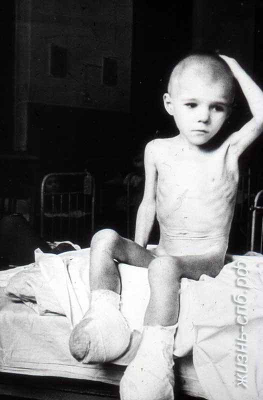 В суровые дни блокады Ленинграда умерло от голода 641 803 человека.